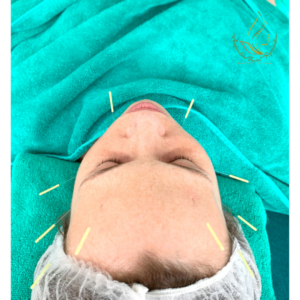 Facial Acupuncture to lift